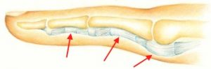 trigger finger: tendon in the tendon sheat