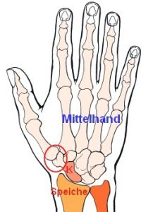saddle joint arthrosis hand arm rh hand arm com Elbow Joint Diagram Pivot Joint Diagram
