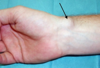 Ganglion cysts along the radial artery