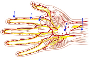 Flexor tendon_phlegmons_proliferation