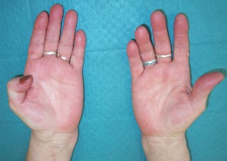 the distal interphalangeal joint of the right thumb cannot be flexed