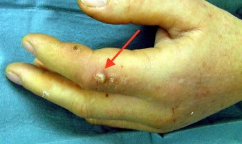 Image of a beginning infection to a finger due to a dog bite