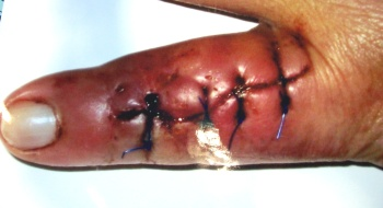 Infection as a result of a dog bite which was sealed off by skin suture.