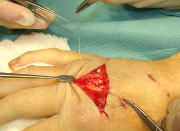 Extensor tendon injuries to the hand or wrist - hand-arm