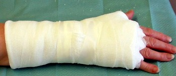 Cast immobilization on a hand which was treated for a flexor tendon phlegmon.