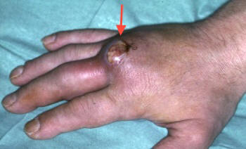 Suppuration within a metacarpophalangeal joint following a bite injury.