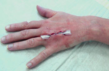 The image shows drainage applied after surgery on a beginning phlegmon on the back of the hand after an incurred cat bite.