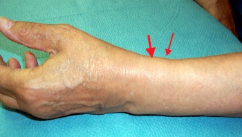 Thickening of the first extensor compartment.