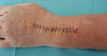 Incision in connection with a wrist arthrodesis procedure.