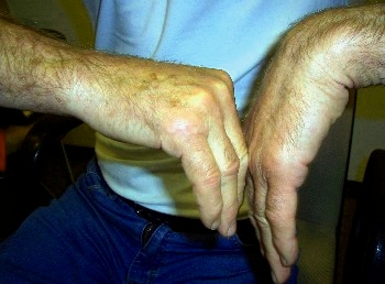 Total wrist fusion compared to a healthy hand.