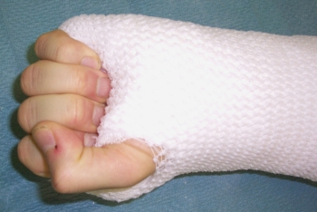 Cast used for immobilization after a wrist arthrodesis.