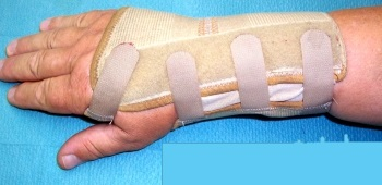 Wrist splint used to immobilize a wrist.