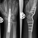 Arthrodesis of a wrist joint with the help of a metal plate.