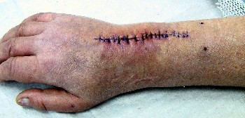 Skin sutures after implantation of an artificial wrist joint.