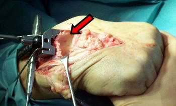 Placing an artificial wrist joint.