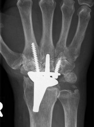 Wrist joint prosthesis (artificial wrist joint) seen in an x-ray.