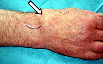 Severe wrist joint osteoarthritis with swelling of the wrist joint.